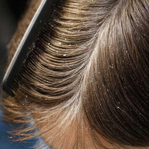 dandruff on the head of dark-haired guy